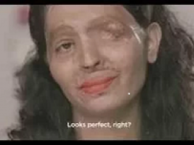 An article of an Acid attack survivor